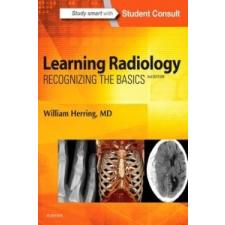 Learning Radiology – William Herring idegen nyelvű könyv